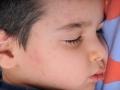 child-face-urticaria-800x531-jpg