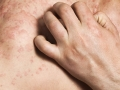 closeup-of-man-scratching-urticaria-jpg