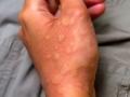 hand-urticaria-jpg