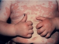 urticaria-in-child-from-fitzpatric-800x600-dermatology-secrets-4th-edition-2011-jpg
