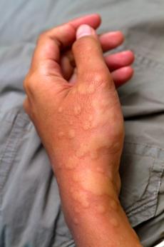 χρόνια κνίδωση - Urticaria 7