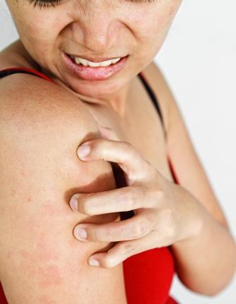χρόνια κνίδωση - chronic urticaria QoL