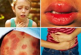 collage of anaphylaxis symptoms