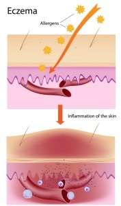 mechanics of eczema