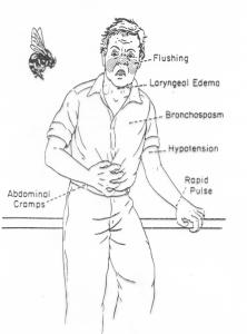 Συμπτώματα αναφυλαξίας