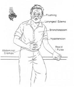 Κλινικές εκδηλώσεις αναφυλαξίας