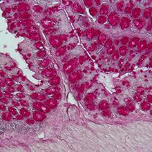 Η εντερική μικροχλωρίδα (microbiota).Iστολογική χρώση ενός τμήματος του παχέος εντέρου) Πηγή: Δρ Caspar Ohnmacht, ZAUM