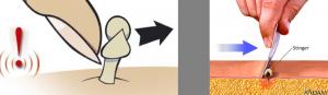 Αφαίρεση κεντριού