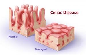 celiac-disease_0177ac66208d5826963c65f8b2c56426