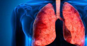 Νέοι βιολογικοί παράγοντες για τη θεραπεία του σοβαρού άσθματος: θα  αποδειχθούν χρήσιμοι;