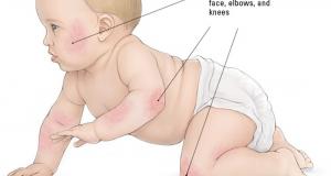Που οφείλεται η αύξηση της τροφική αλλεργίας? Φταίει το δέρμα?